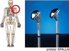 protesi1