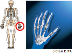protesi2