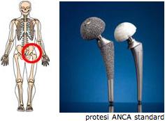 protesi3