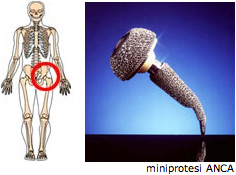 protesi4