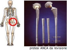 protesi6