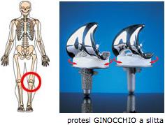 protesi7