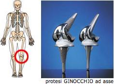 protesi8